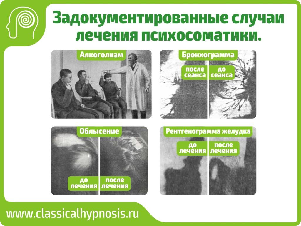 Лчение психосоматикаи гипнозом